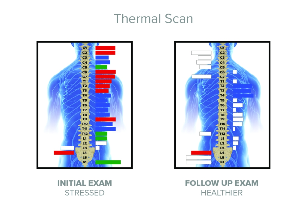 thermal_scan